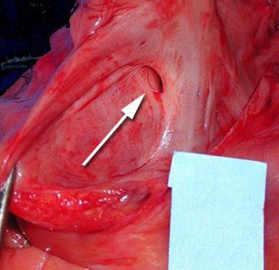 A seta indica a Forameoval Patente no coração do paciente.